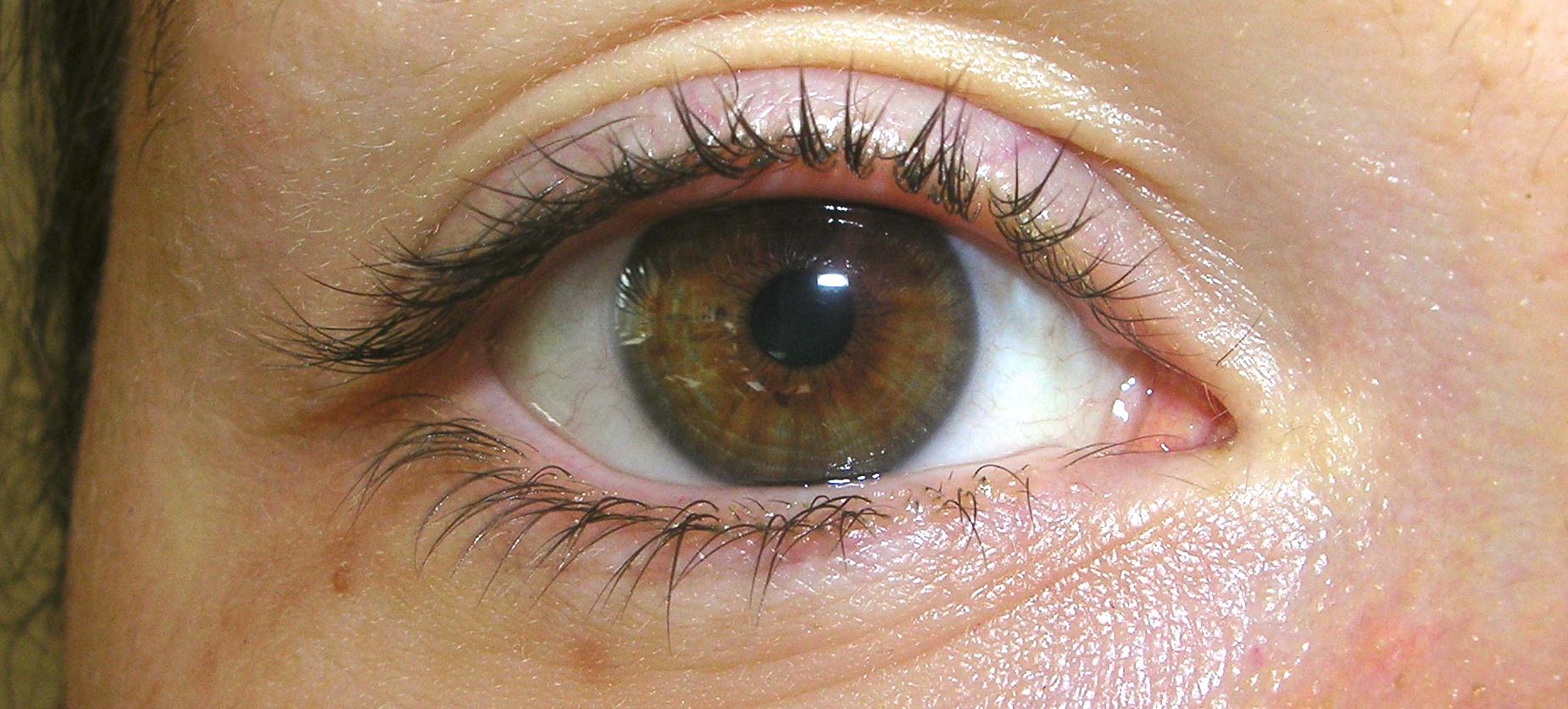 Mjälleksem ögon